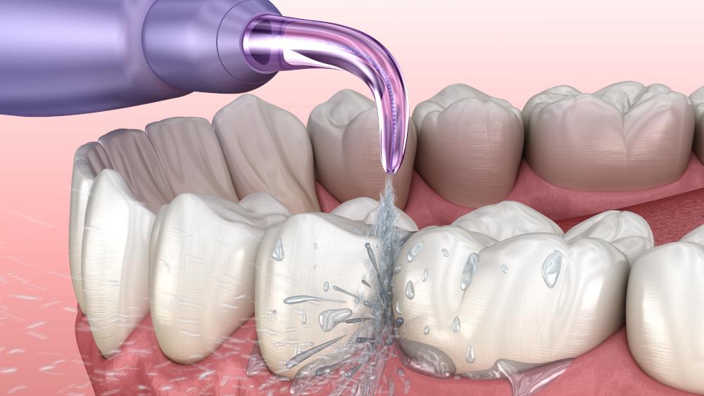 Как правильно пользоваться ирригатором полости рта: инструкция, советы по  уходу